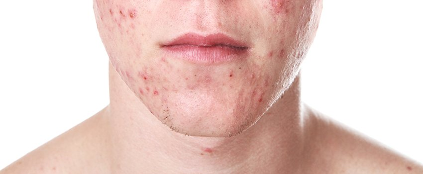 What Is Causing My Acne?
