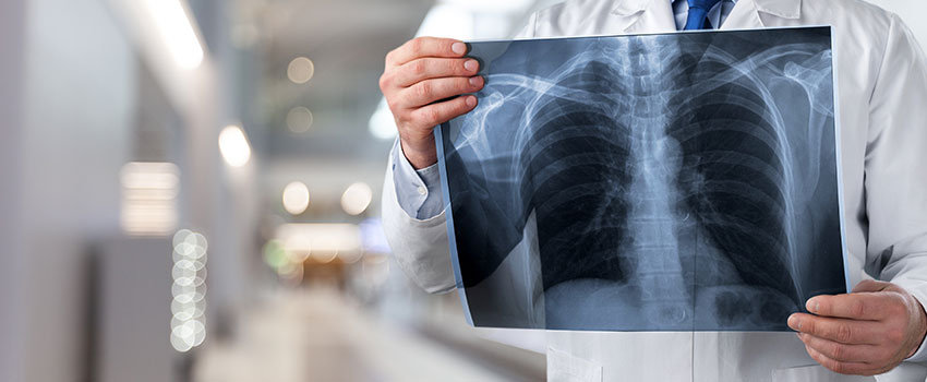 What's the Purpose of an X-ray?