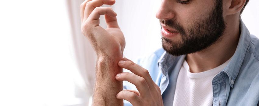 What Does An Allergic Rash Look Like?